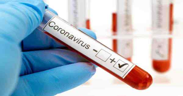Coronavirus Live update: India reports 75,809 new cases,tally hits 4,280,422